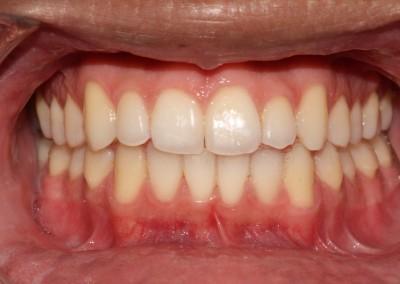 Essex After braces