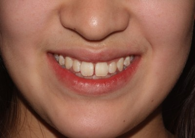 Spaced teeth before clear fixed braces Essex