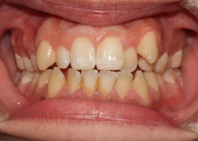 Crowded top and bottom teeth before clear fixed braces fastbraces