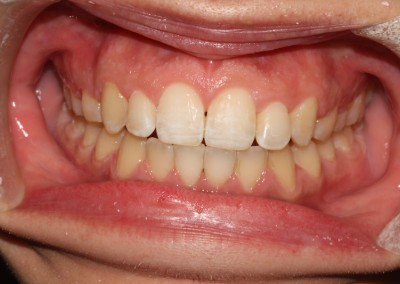 Crowded top and bottom teeth after clear fixed braces Essex fastbraces