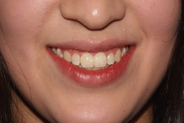Spaced teeth after clear fixed braces Essex