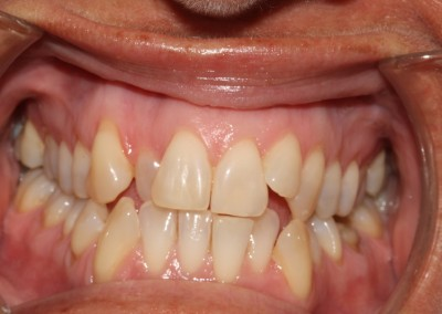 Crowded top and bottom teeth before clear fixed braces Essex