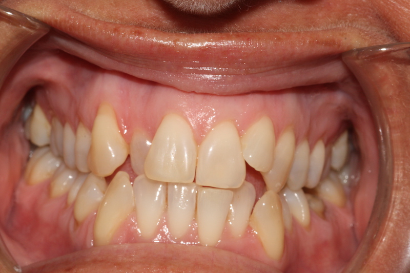 Crowded top and bottom teeth before clear fixed braces