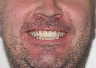 dental-veneer-essex-an-22