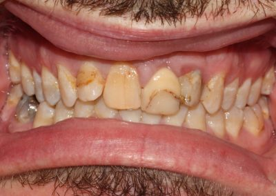 dental-veneer-essex-an-33