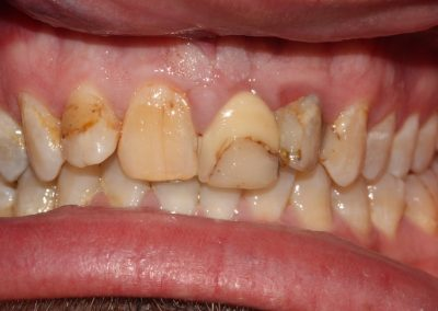 dental-veneer-essex-an-44