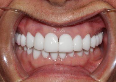 dental-veneer-essex-da-11