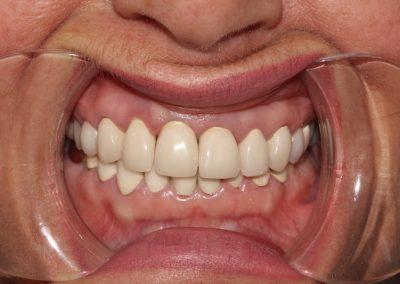 dental-veneer-essex-da-44