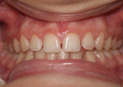 dental-veneer-essex-hy-110