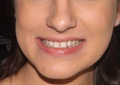 dental-veneer-essex-hy-12