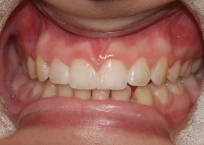 dental-veneer-essex-hy-15
