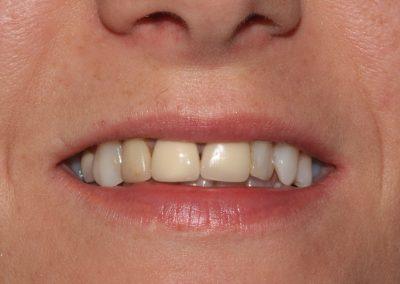 dental-veneer-essex-re-11