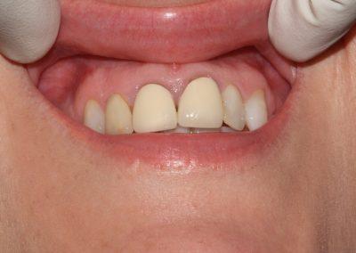 dental-veneer-essex-re-22