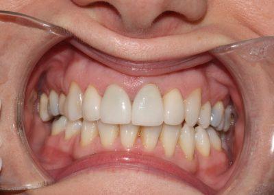 dental-veneer-essex-re-33
