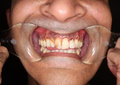 dental-veneer-essex-sh-22