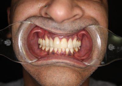 dental-veneer-essex-sh-33