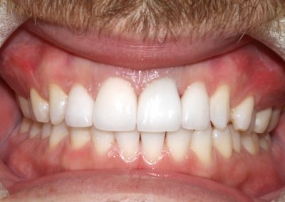 dental-veneer-essex-st-01