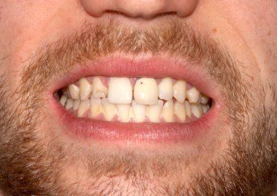 dental-veneer-essex-st-57