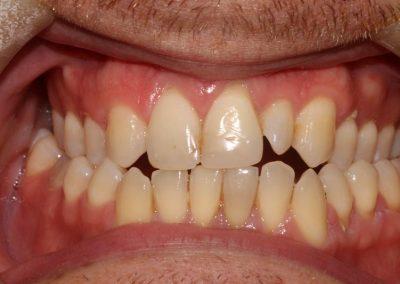 edited-veneers-lee-tyrell-2-braces-essex-2