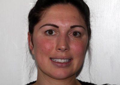 Sarah Veneers Essex