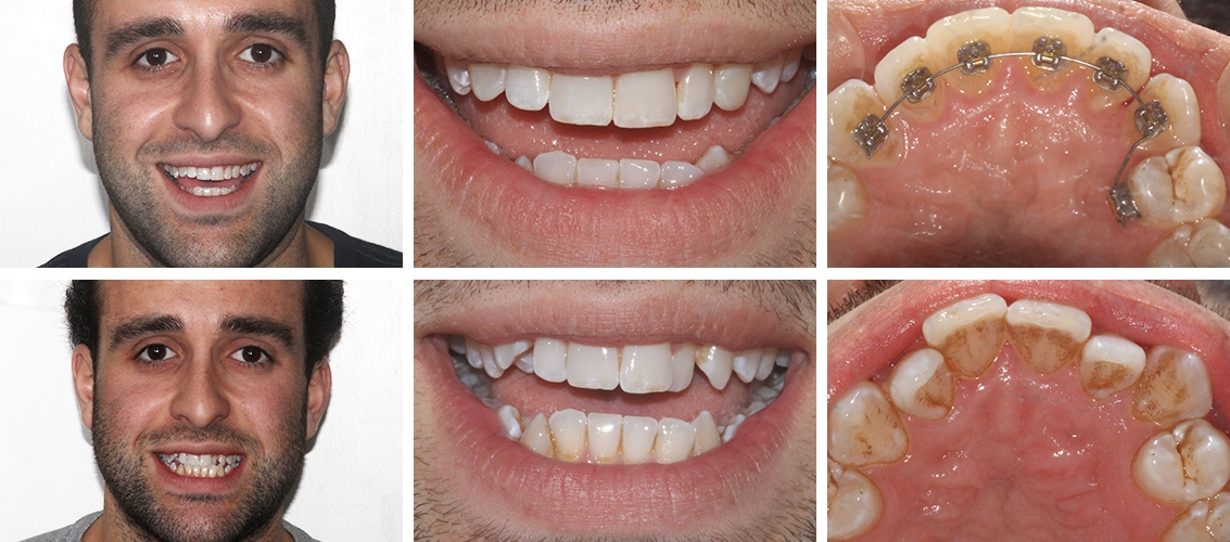 Lingual Braces before and after at street farm dental in Essex