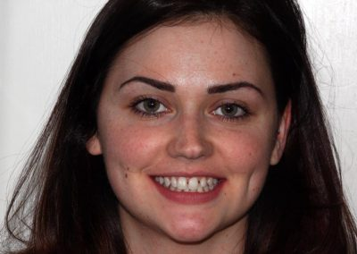 dental-braces-essex-Amy M-4