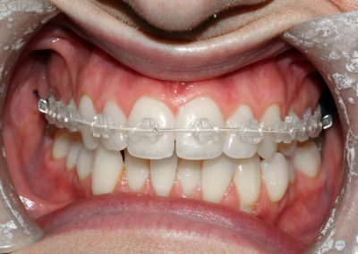 dental-braces-essex-Aston-1