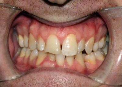 dental-braces-essex-Daniel B-1