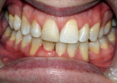 dental-braces-essex-Daniel B-3