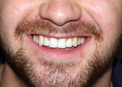 dental-braces-essex-George B-4