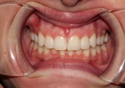 dental-braces-essex-Helen S-4