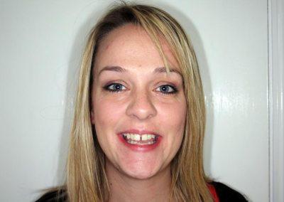 dental-braces-essex-Helen S-5