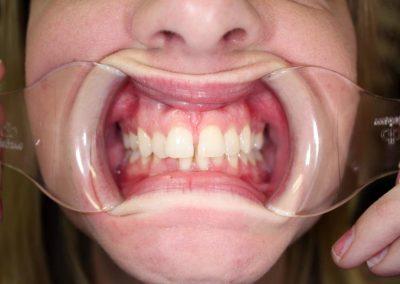 dental-braces-essex-Helen S-7