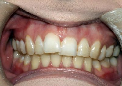 dental-braces-essex-Isabelle-1