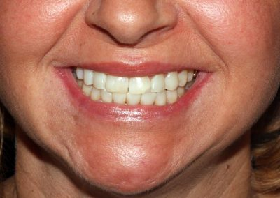 dental-braces-essex-Jacqueline-4