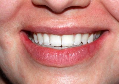 dental-braces-essex-Jane-2