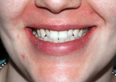 dental-braces-essex-Jane-4
