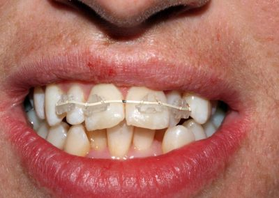 dental-braces-essex-Leanne-4