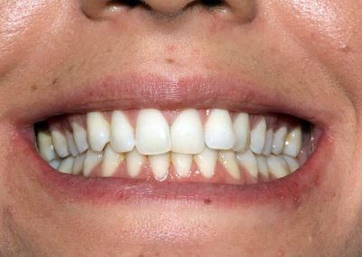 dental-braces-essex-Maria-2