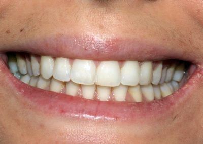 dental-braces-essex-Maria-4