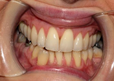 dental-braces-essex-Michelle P-1