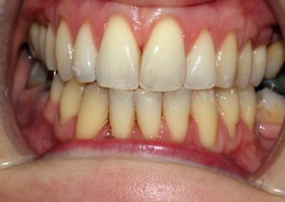 dental-braces-essex-Michelle P-2