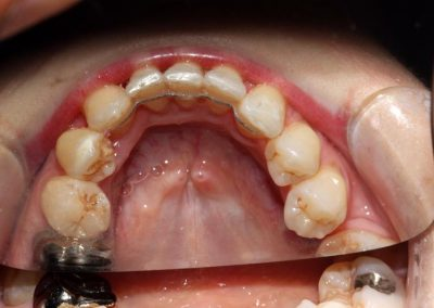 dental-braces-essex-Michelle P-3