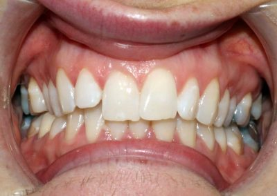 dental-braces-essex-Nicola-1