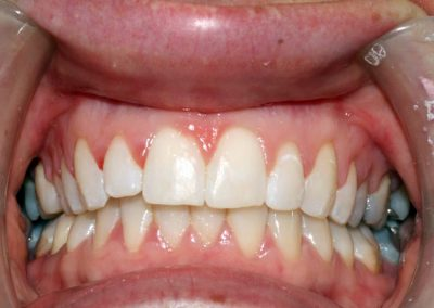 dental-braces-essex-Nicola-2