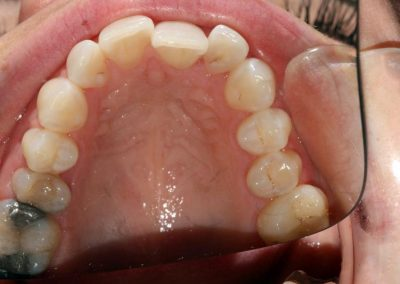 dental-braces-essex-Nicola-3
