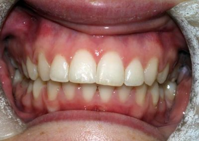 dental-braces-essex-Rachael-3