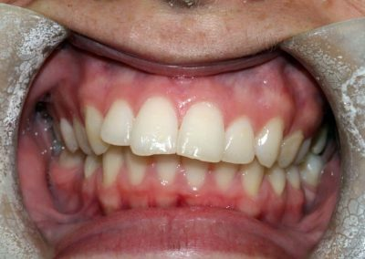 dental-braces-essex-Rachael-4