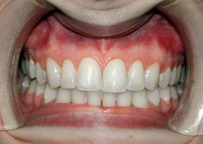 dental-braces-essex-Shima-1