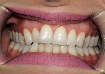 dental-braces-essex-Shima-3